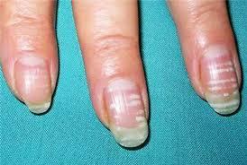 Почему появляются полоски на ногтях